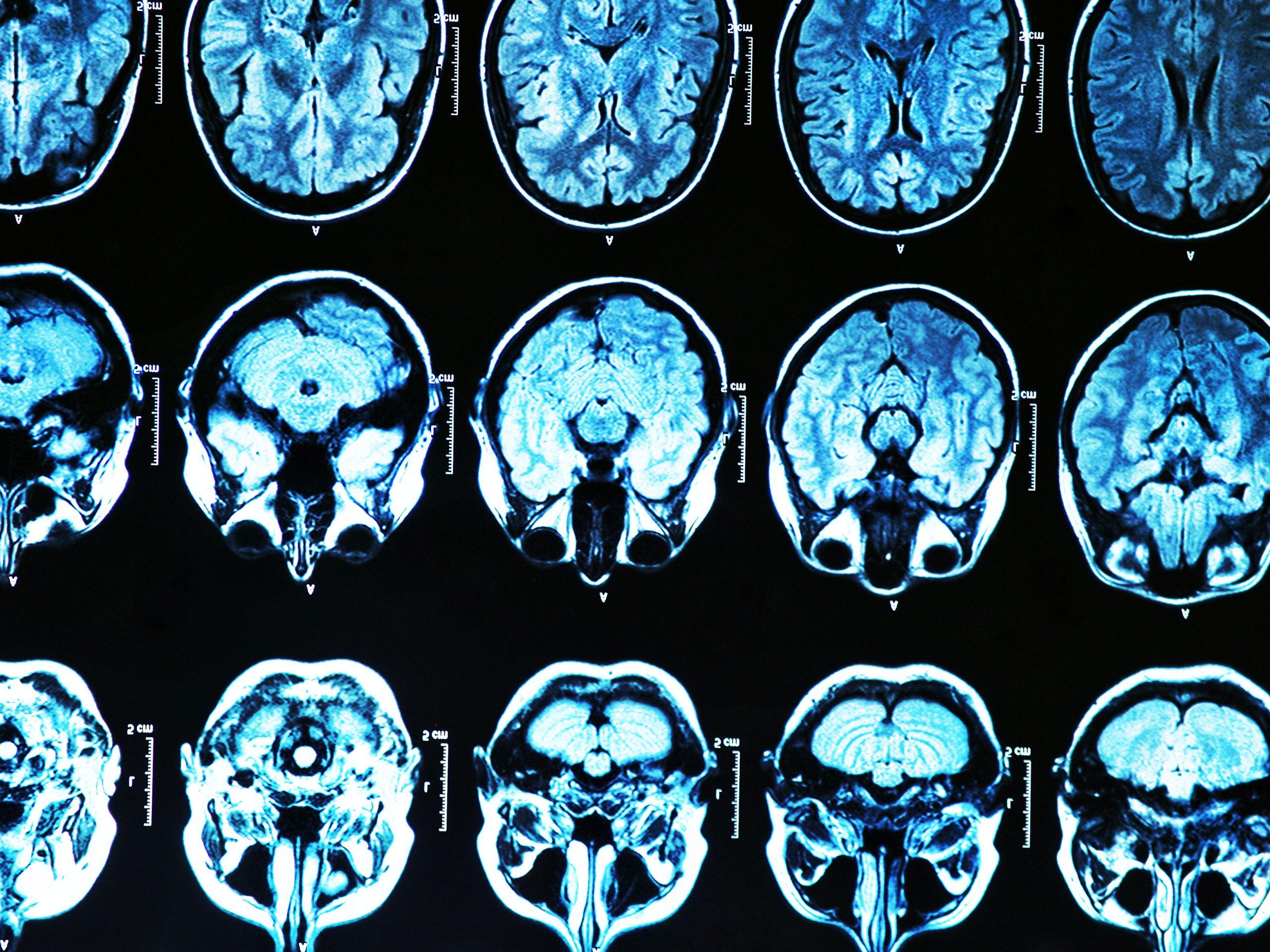 Αλτσχάιμερ γονίδια: Ανακαλύφθηκαν νέες παραλλαγές που τροποποιούν τον κίνδυνο