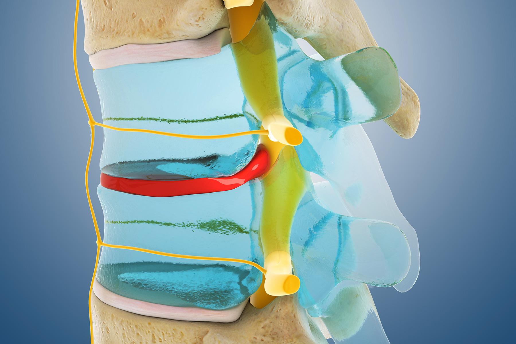 Κορωνοϊός Επιπλοκές: Προβλήματα με τη σπονδυλική στήλη