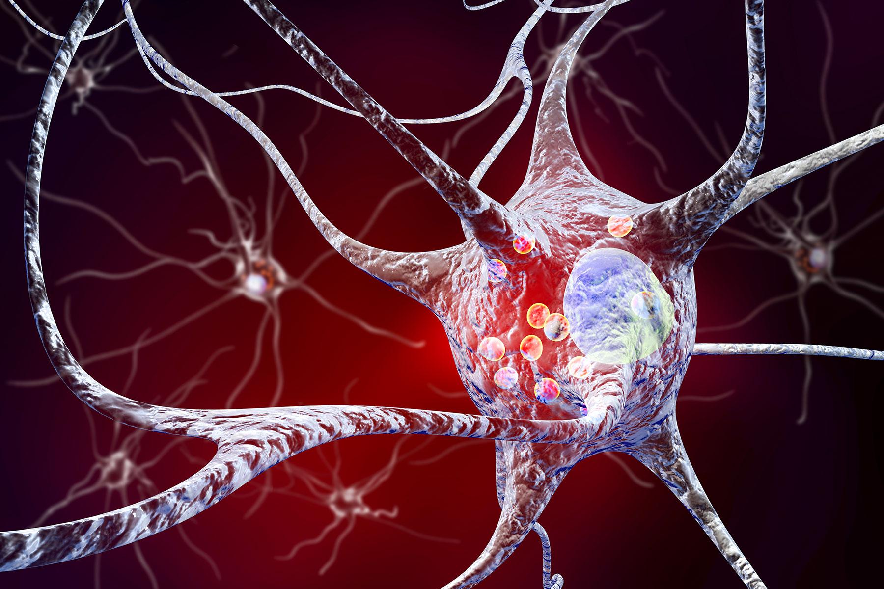 Καρκίνος Εγκεφάλου: Επιστήμονες ανακάλυψαν δομές στον εγκέφαλο ασθενών με καρκίνο που μπορούν να βοηθήσουν στην αναχαίτιση του
