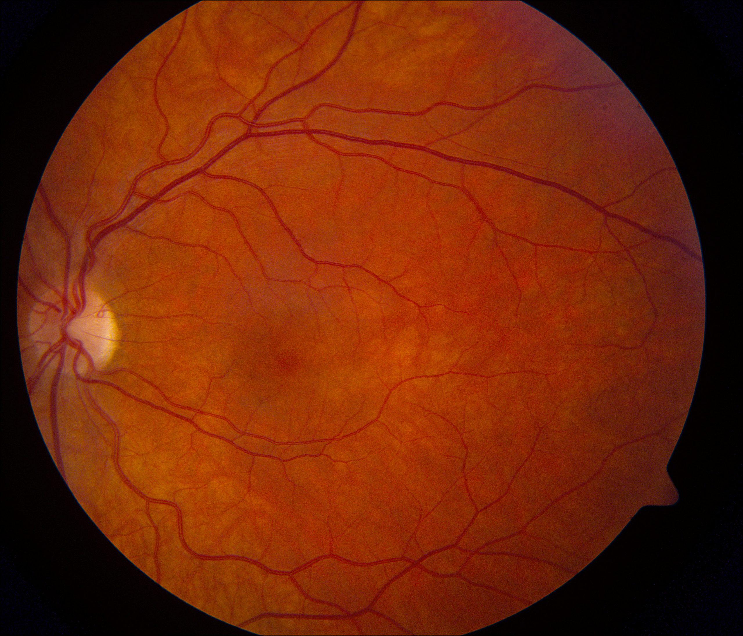Κορωνοϊός μάτια: Σοβαρή βλάβη στον αμφιβληστροειδή