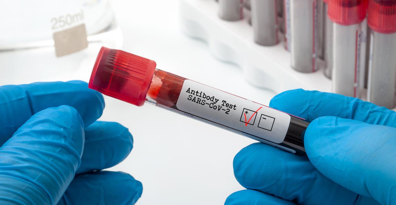 Τεστ κορωνοϊός ασφάλεια: Απαραίτητη πρόληψη – κυκλοφορούν πλαστά covid test
