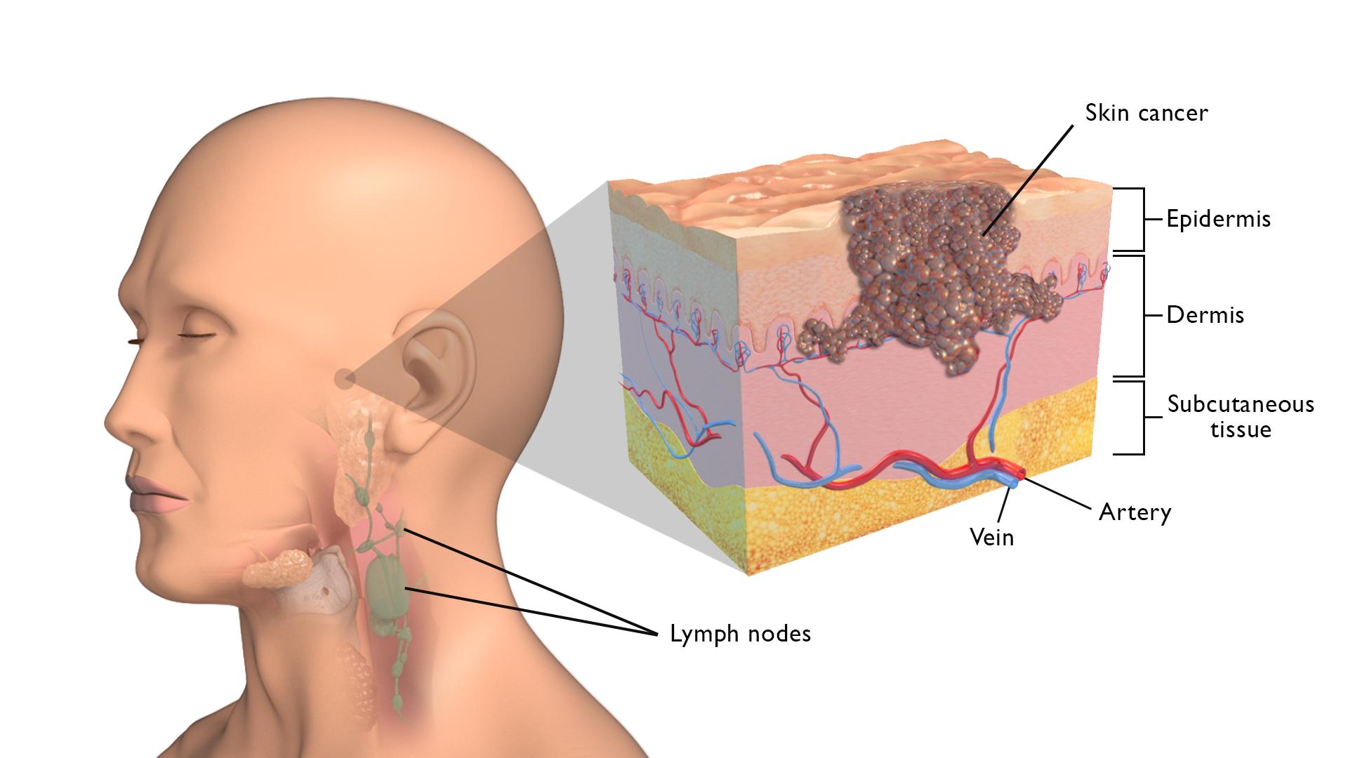 Καρκίνος δέρμα: Ερευνητές αναπτύσσουν ένεση για τη θεραπεία του