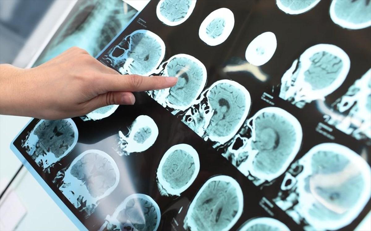 Αλτσχάιμερ εγκέφαλος διαταραχή: Ανακαλύφθηκε πρωτεΐνη – ρυθμιστής της νόσου