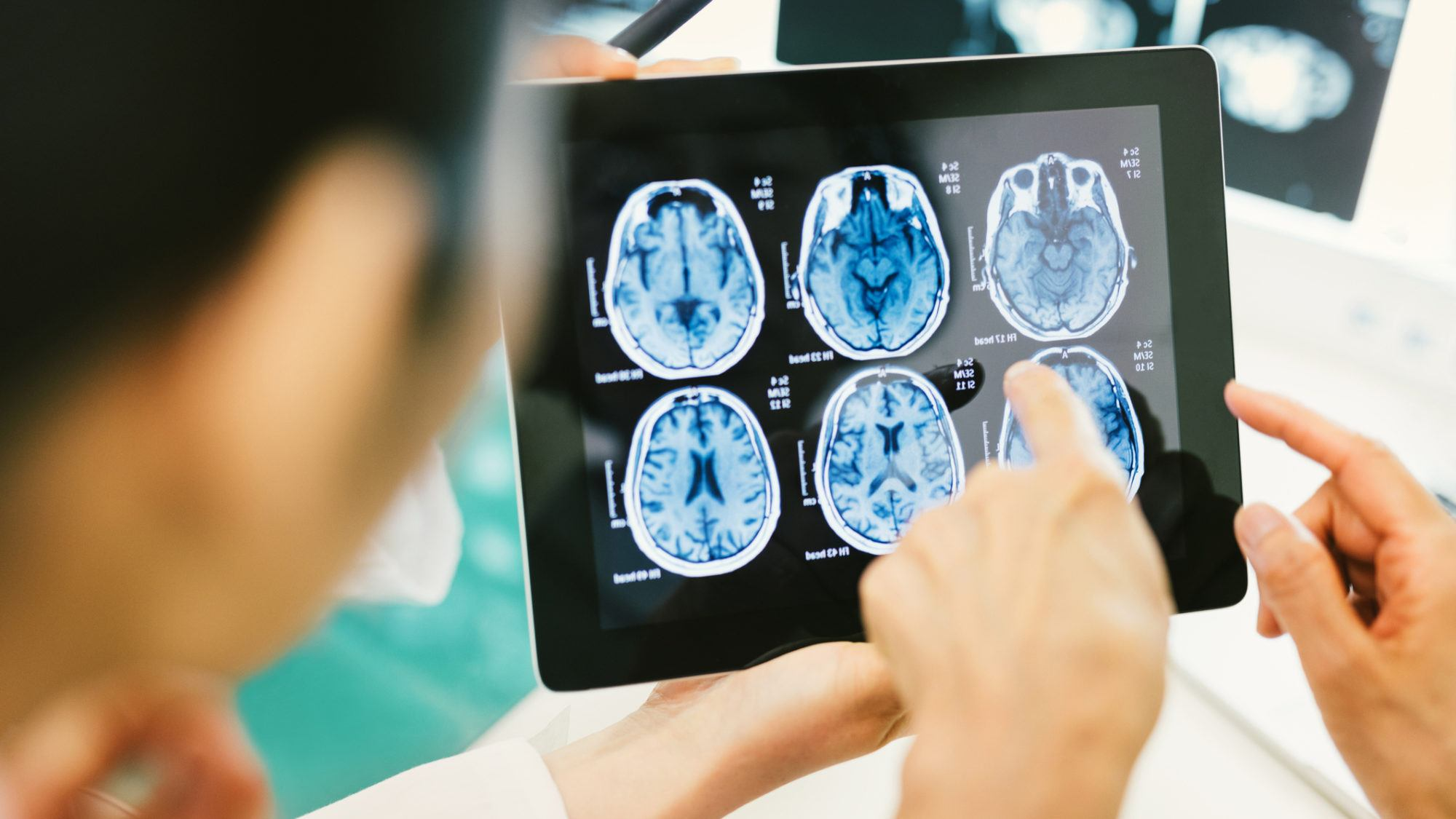 Καναδάς: Μυστηριώδες εγκεφαλικό σύνδρομο σπέρνει τον τρόμο στους κατοίκους