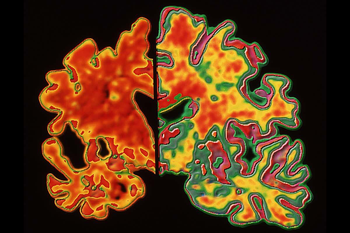 Alzheimer: Η νανοτεχνολογία αρωγός στην έγκαιρη διάγνωση της νόσου