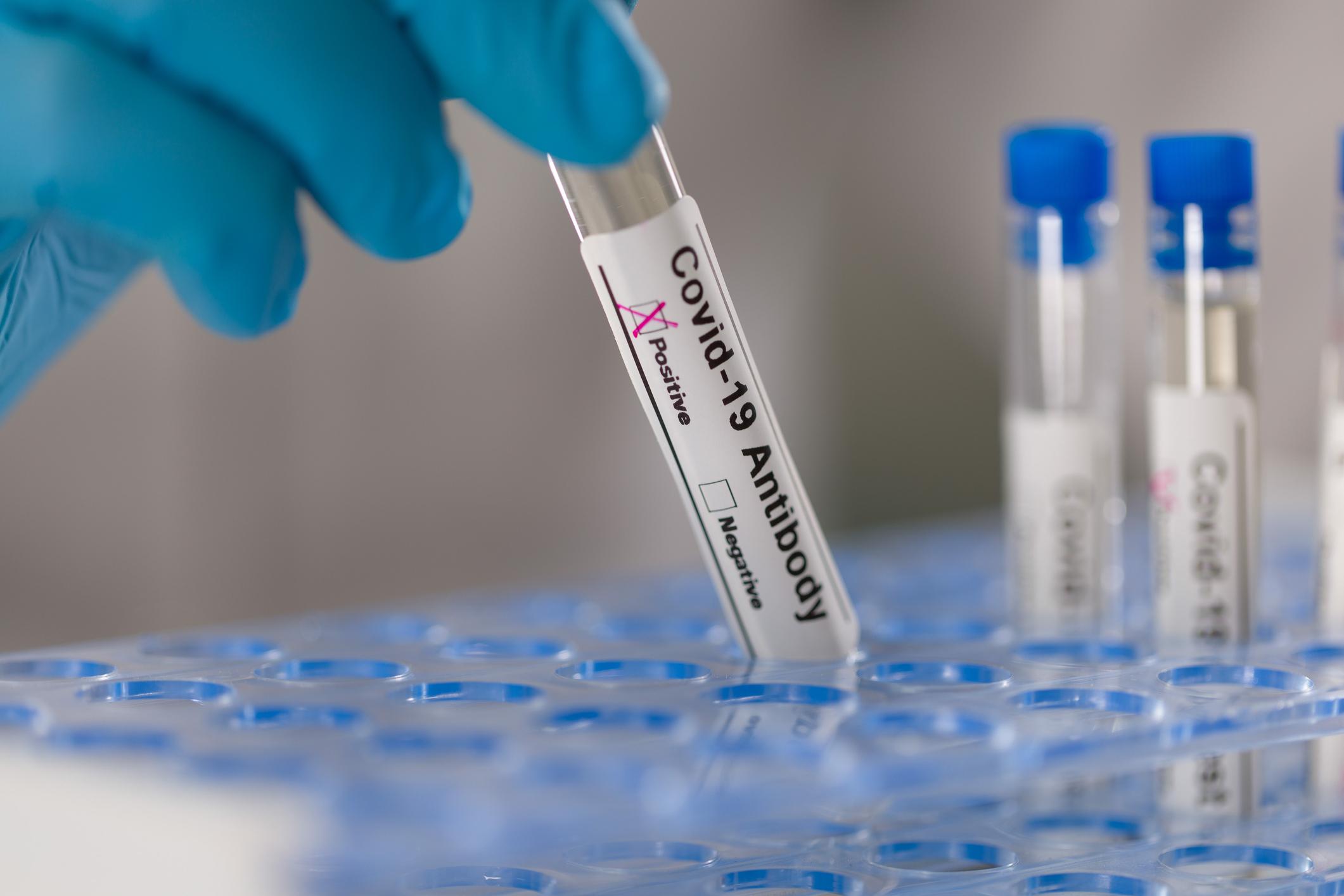 Κορωνοϊός Θεραπεία: Αποτελεσματικά τα μονοκλωνικά αντισώματα για τις μεταλλάξεις