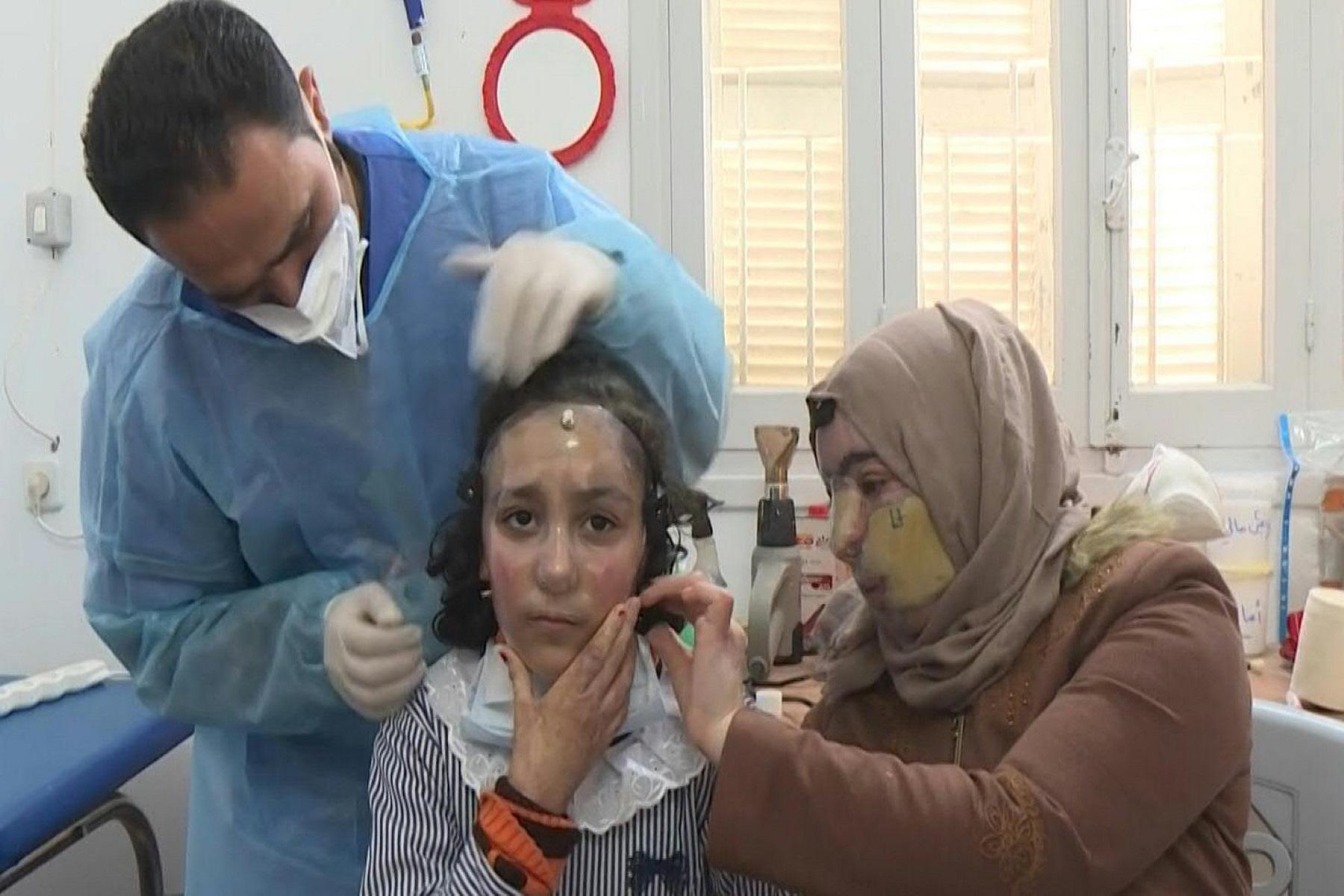 Γιατροί Λωρίδα της Γάζας: Τρισδιάστατη μάσκα επουλώνει εγκαύματα