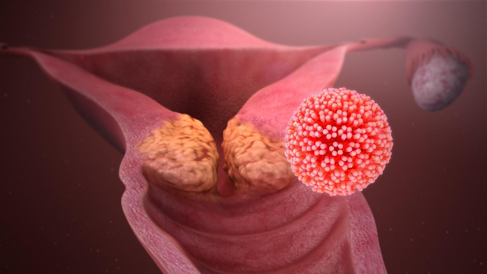 Σεξουαλικά μεταδιδόμενα νοσήματα Καρκίνος: HPV ή Ιός των ανθρώπινων θηλωμάτων και πρόληψη