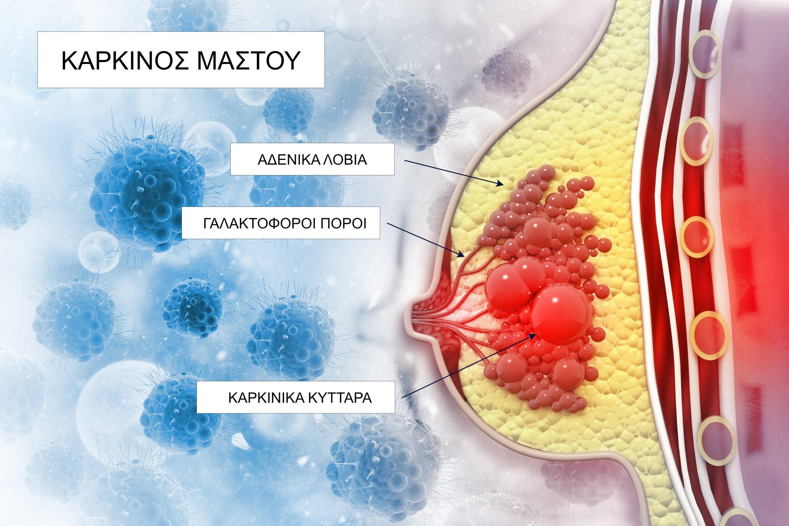 Καρκίνος μαστός όγκος: Οι ερευνητές αποδεικνύουν ότι η αρχιτεκτονική των ιστών ρυθμίζει την εξέλιξη του όγκου