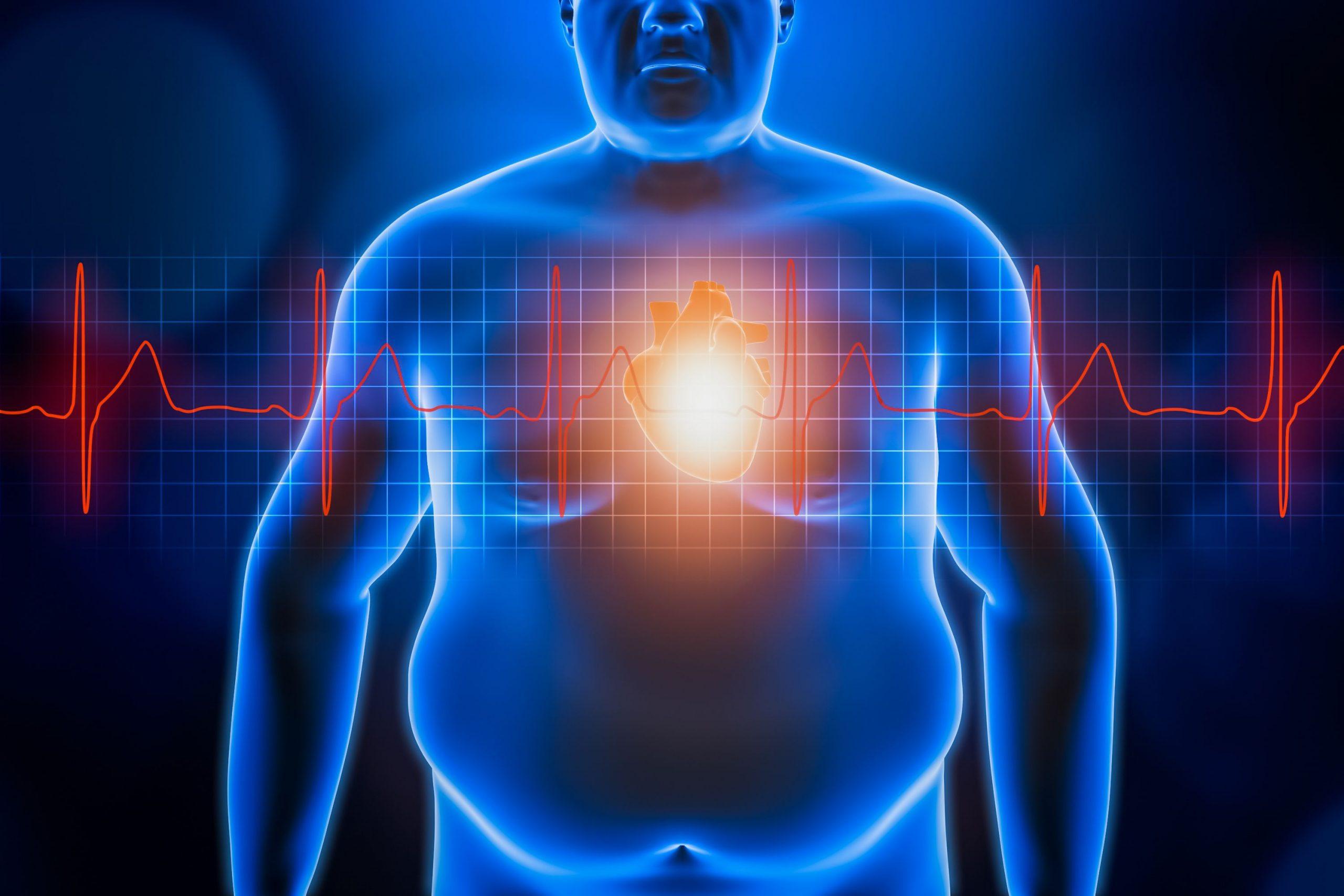 Παχυσαρκία έρευνα μεταμόσχευση: Πως η παχυσαρκία επιδεινώνει τη λειτουργία του μοσχεύματος
