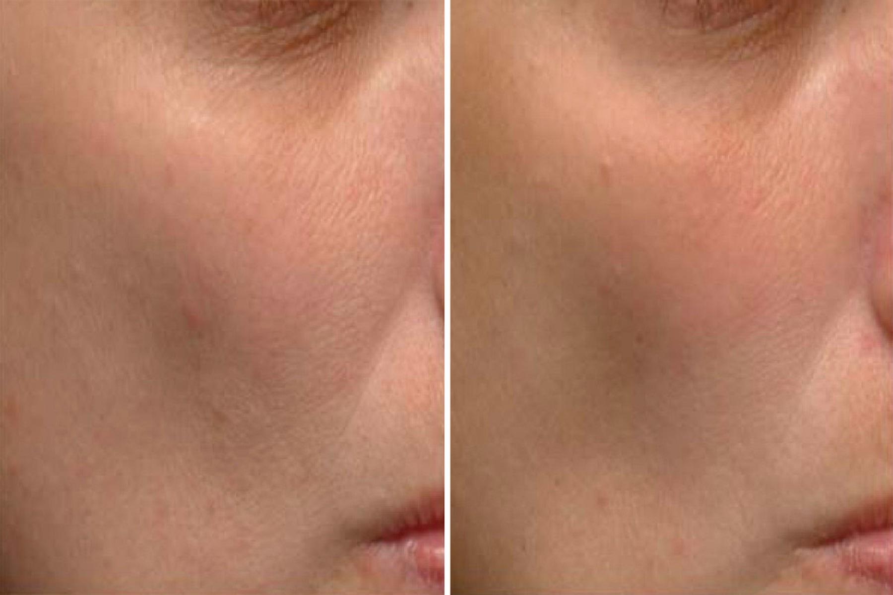Nιασιναμίδη Ρετινόλη: Θεραπευτικά συστατικά για την ακμή και τον υπερχρωματισμό του δέρματος