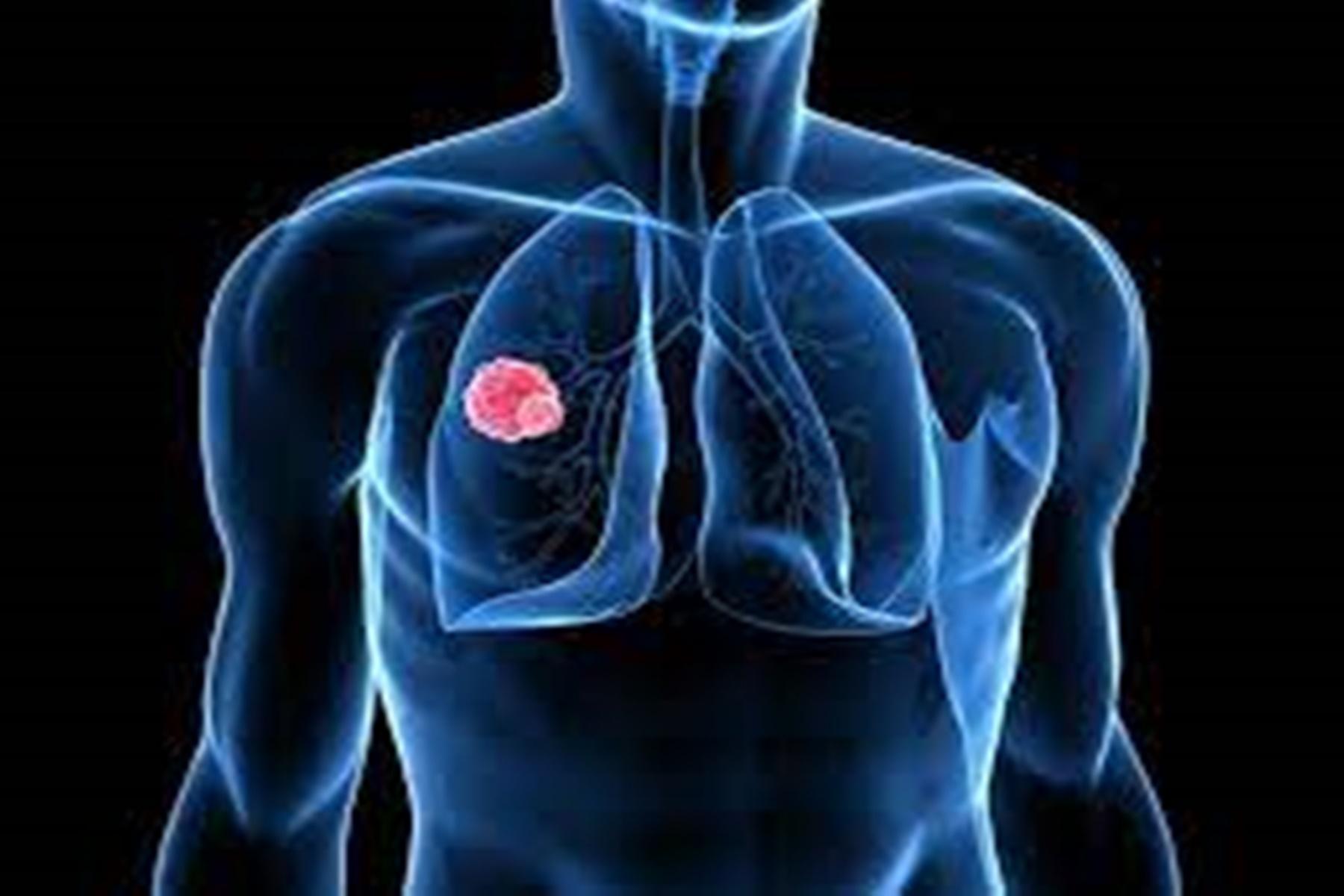 Καρκίνος πνεύμονα : Προσδόκιμο ζωής ασθενών σταδίου 4