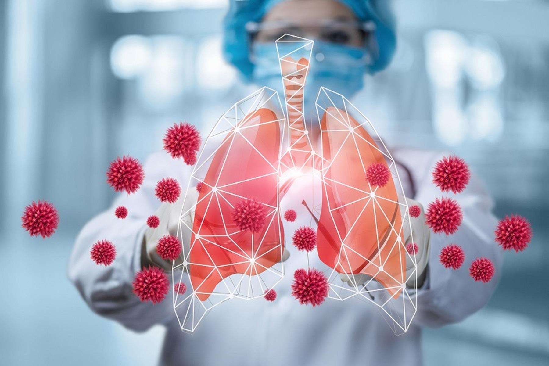 Νέα Μελέτη: Η πρωτεΐνη ακίδων της Covid παίζει βασικό ρόλο στην ασθένεια