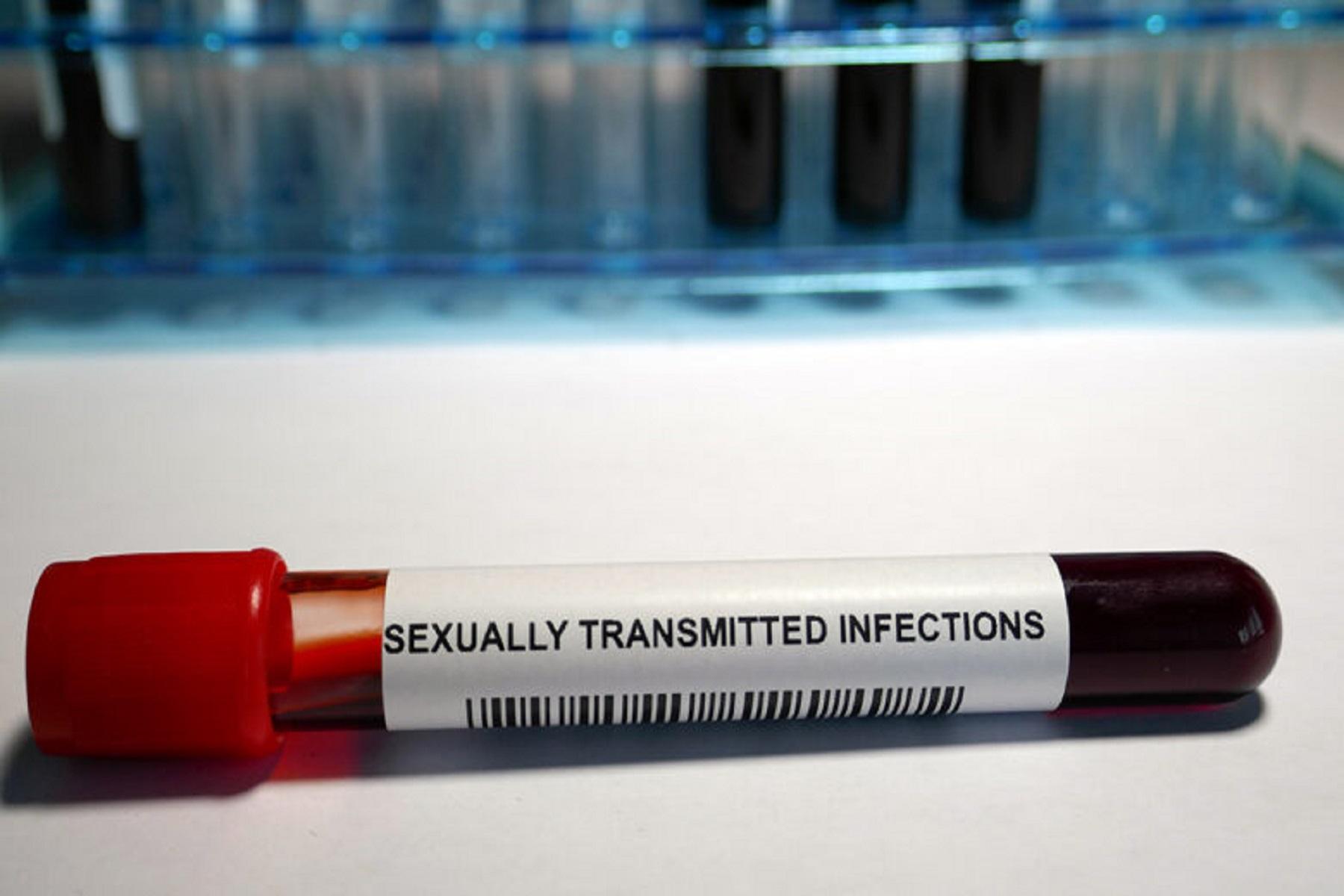 Μελέτη Κορωνοϊός: Αύξηση των σεξουαλικά μεταδιδόμενων νοσημάτων λόγω μειωμένων τεστ εν μέσω πανδημίας