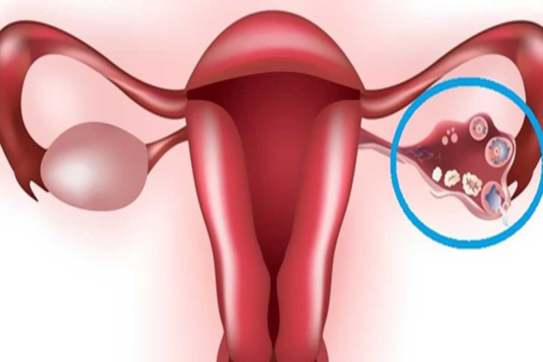 Κύστες στην ωοθήκη : Συμβουλές για να θεραπευτείτε από το σπίτι