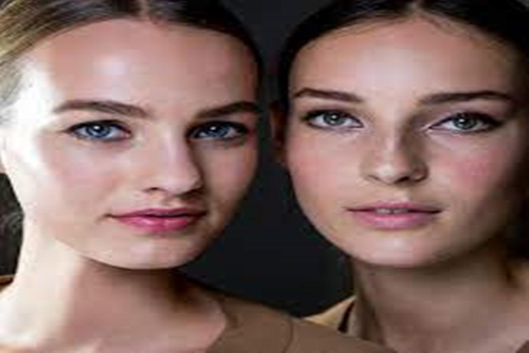 Λιπαρό δέρμα : Θεραπείες να το αντιμετωπίσετε
