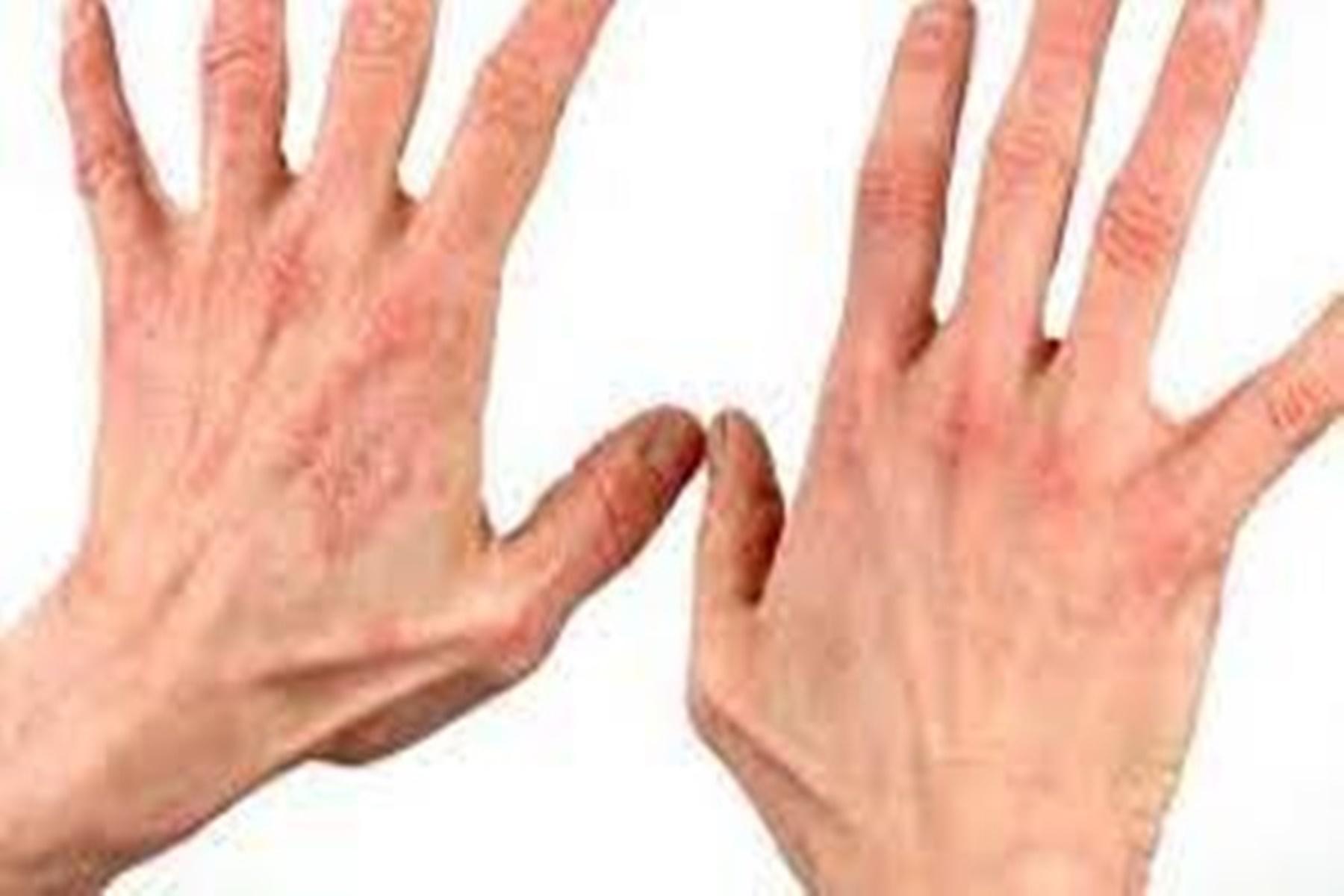 Ατοπική δερματίτιδα : Συμβουλές για να την αντιμετωπίσετε