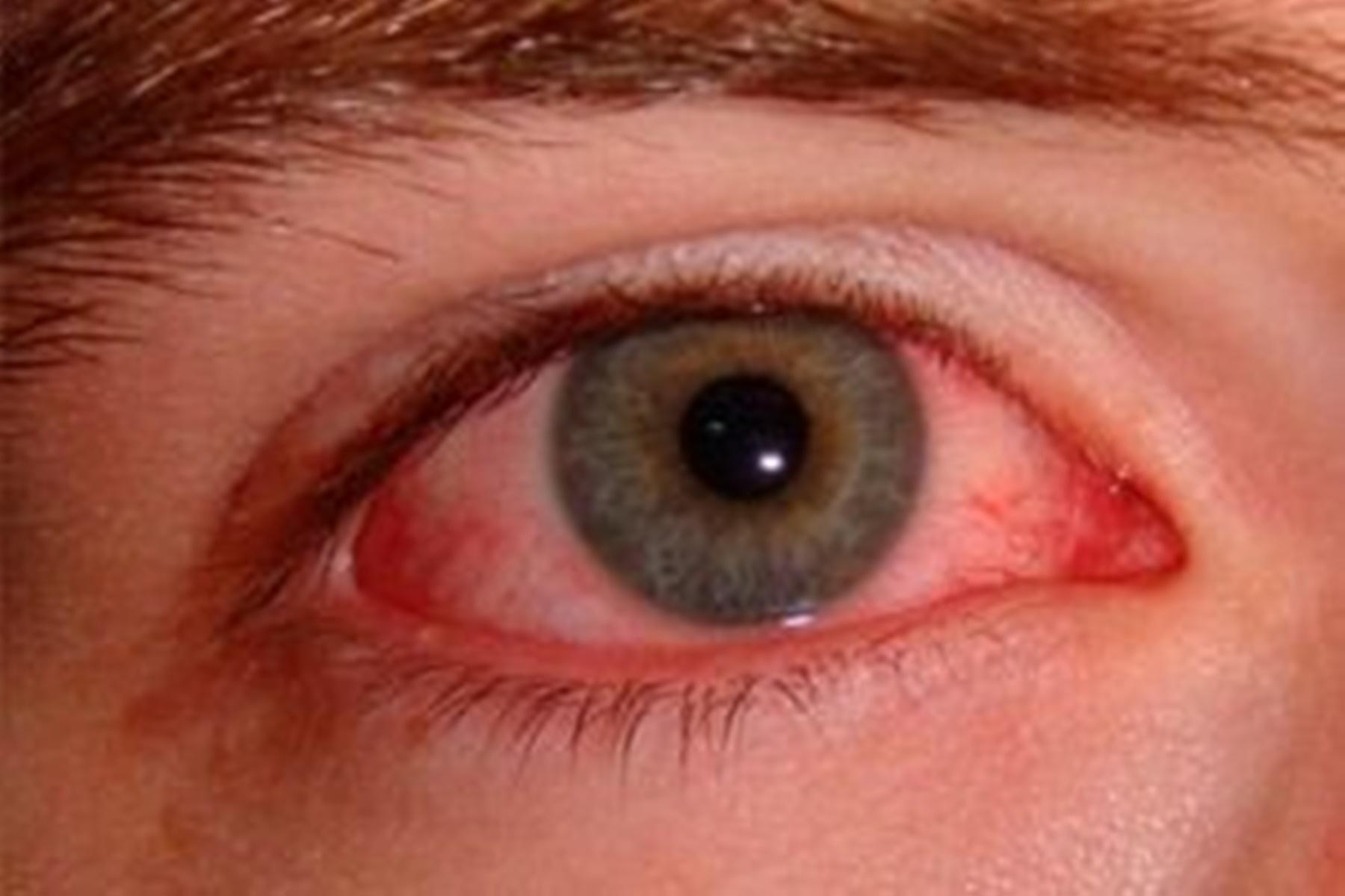 Ερυθρά μάτια : Αιτίες που τα προκαλούν