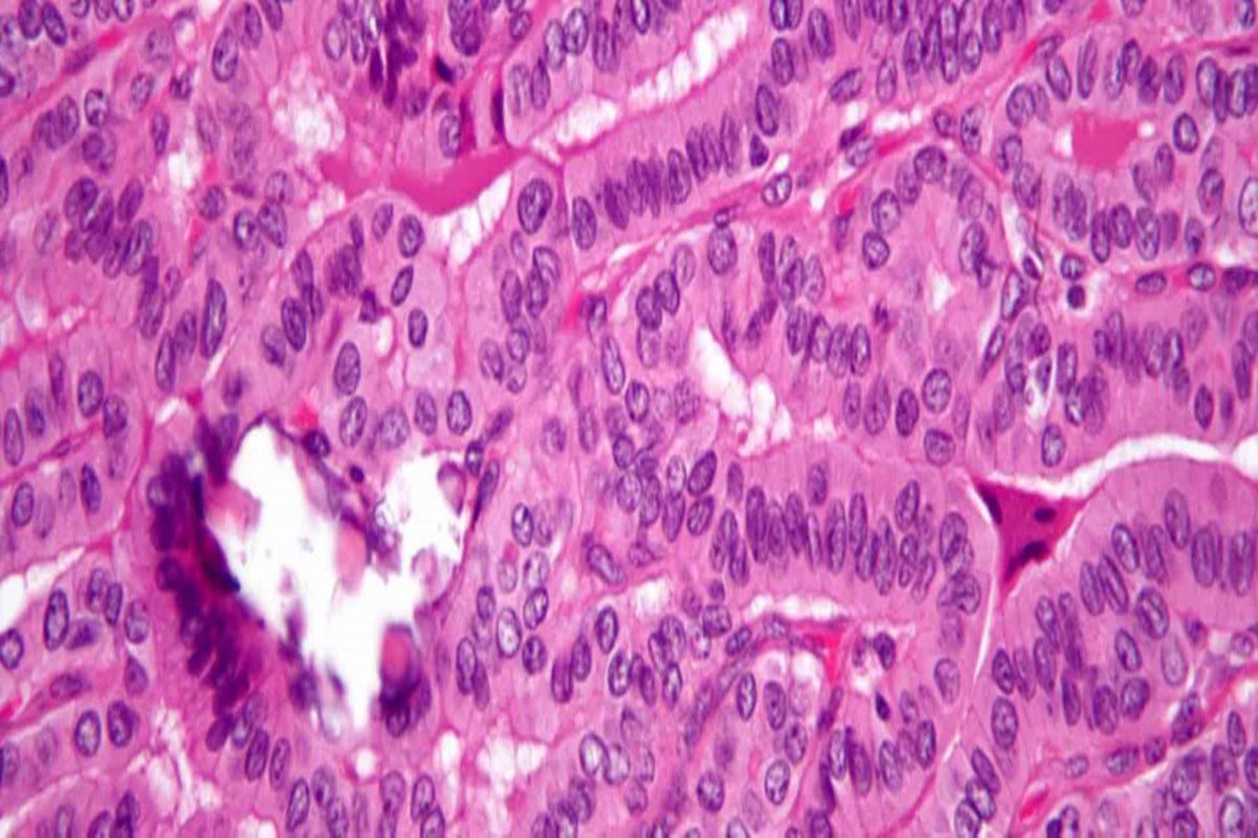 Θηλώδες καρκίνωμα : Πλήρες ιάσιμο σε αρχικό στάδιο ανίχνευσης