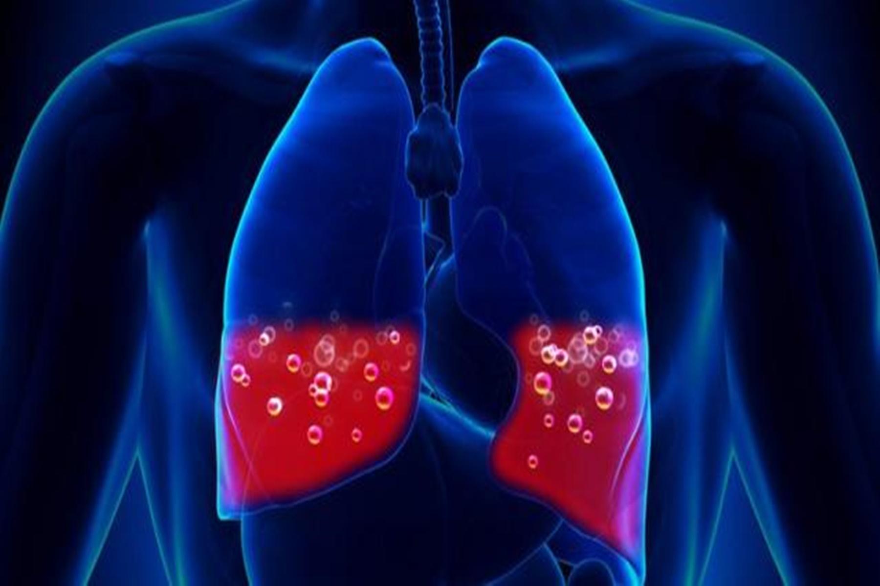 Διάμεση πνευμονοπάθεια : Έτσι διαμορφώνεται το προσδόκιμο ζωής των ασθενών