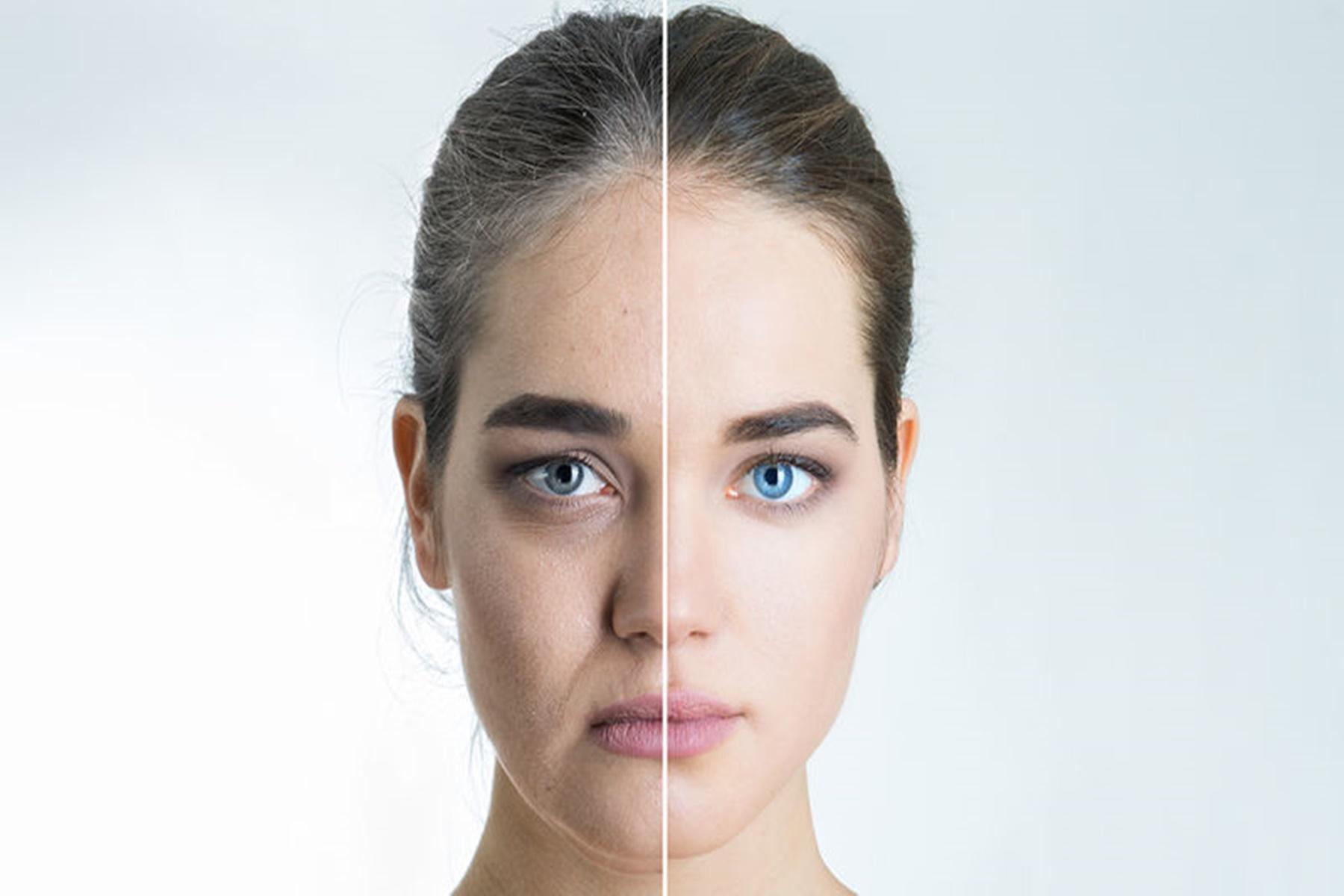 Δέρμα : Tips για να το φροντίσετε
