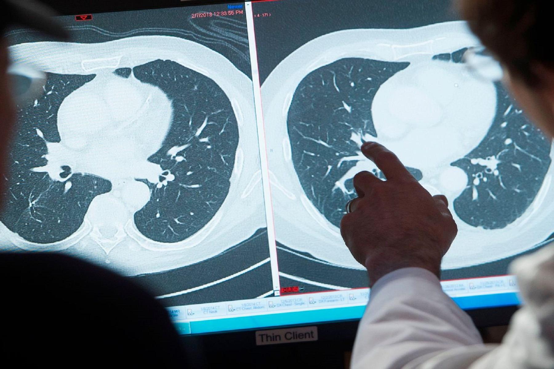 Εθνικό Ινστιτούτο Καρκίνου: Συνολικά τα ποσοστά θανάτου από καρκίνο μειώνονται στις ΗΠΑ, σύμφωνα με έκθεση