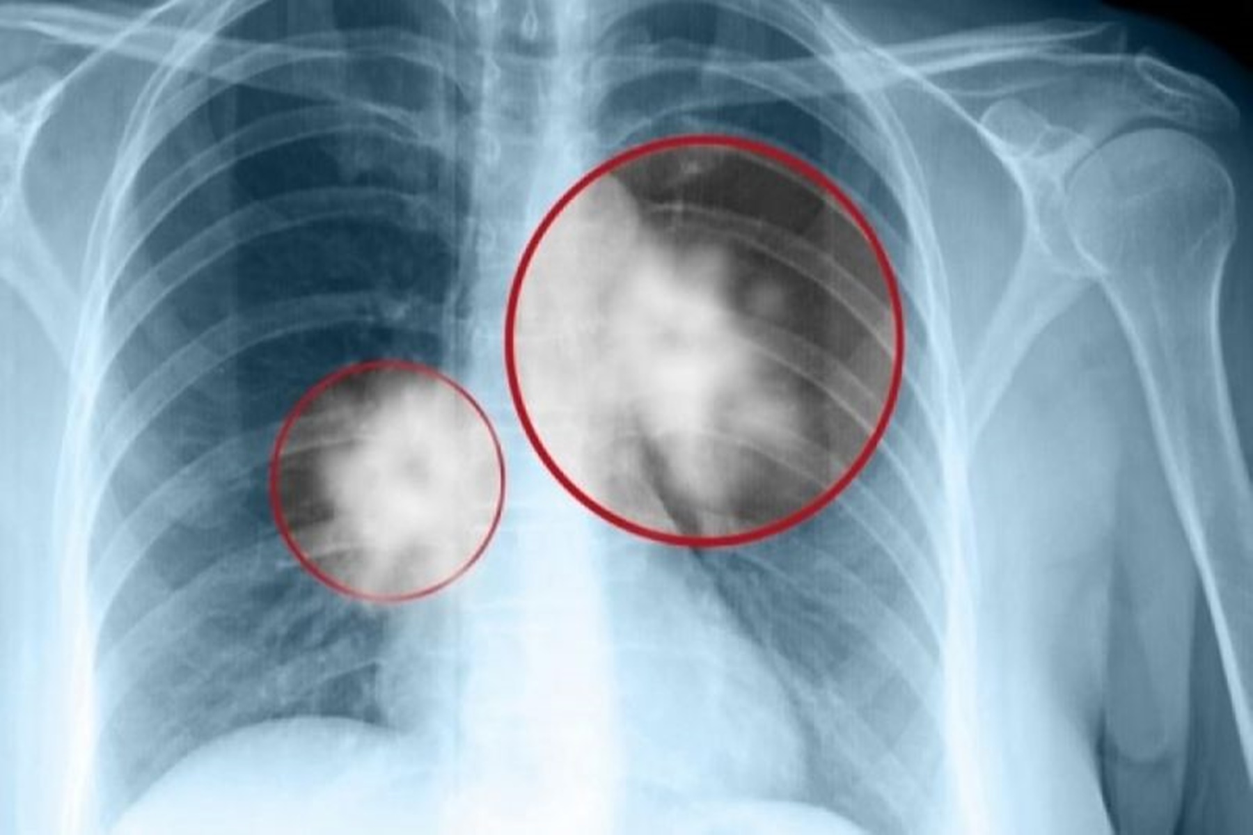 Μικρός Καρκίνος του πνεύμονα : Έτσι διαμορφώνεται το προσδόκιμο ζωής των ασθενών