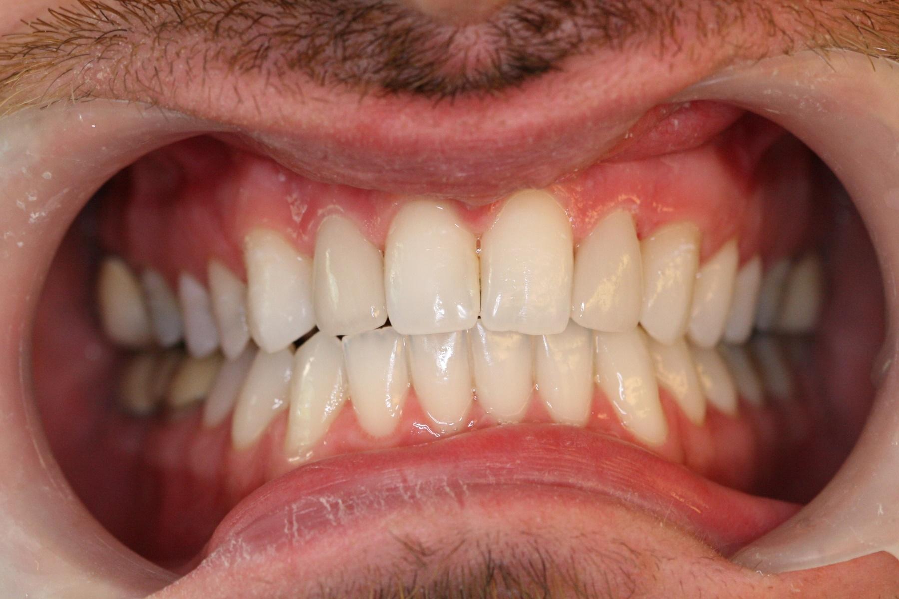 Λεύκανση δοντιών :  Λάμψη και αστραφτερότητα με διάρκεια