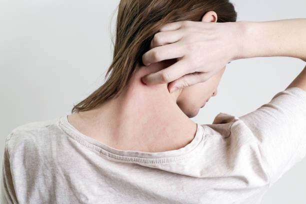 Φαγούρα στο δέρμα: Πώς να την θεραπεύσετε μόνοι σας και Πότε να δείτε γιατρό