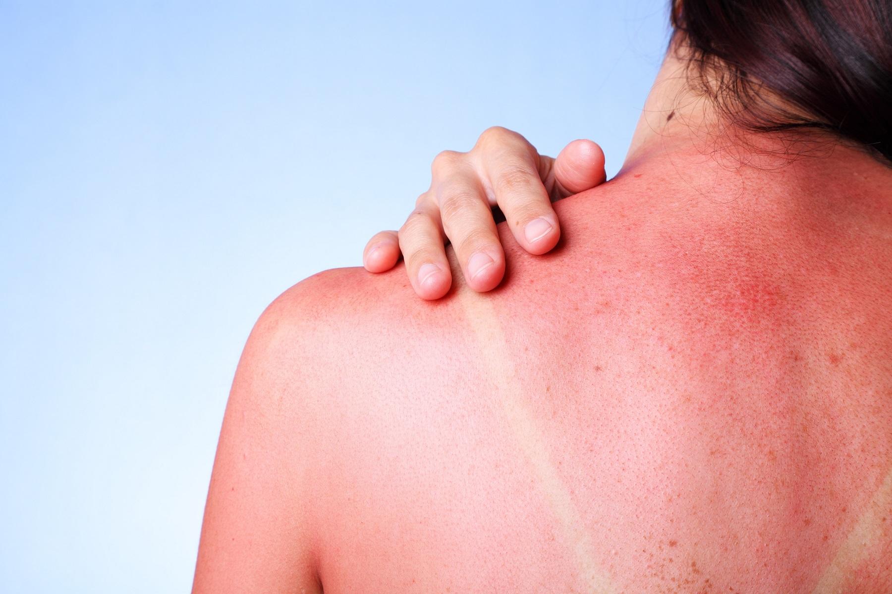 Θάλασσα Ήλιος: Πώς να θεραπεύσετε ένα ηλιακό έγκαυμα