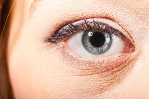 Ξηροδερμία Μάτια: Τι να κάνετε εάν έχετε ξηροδερμία κάτω από τα μάτια