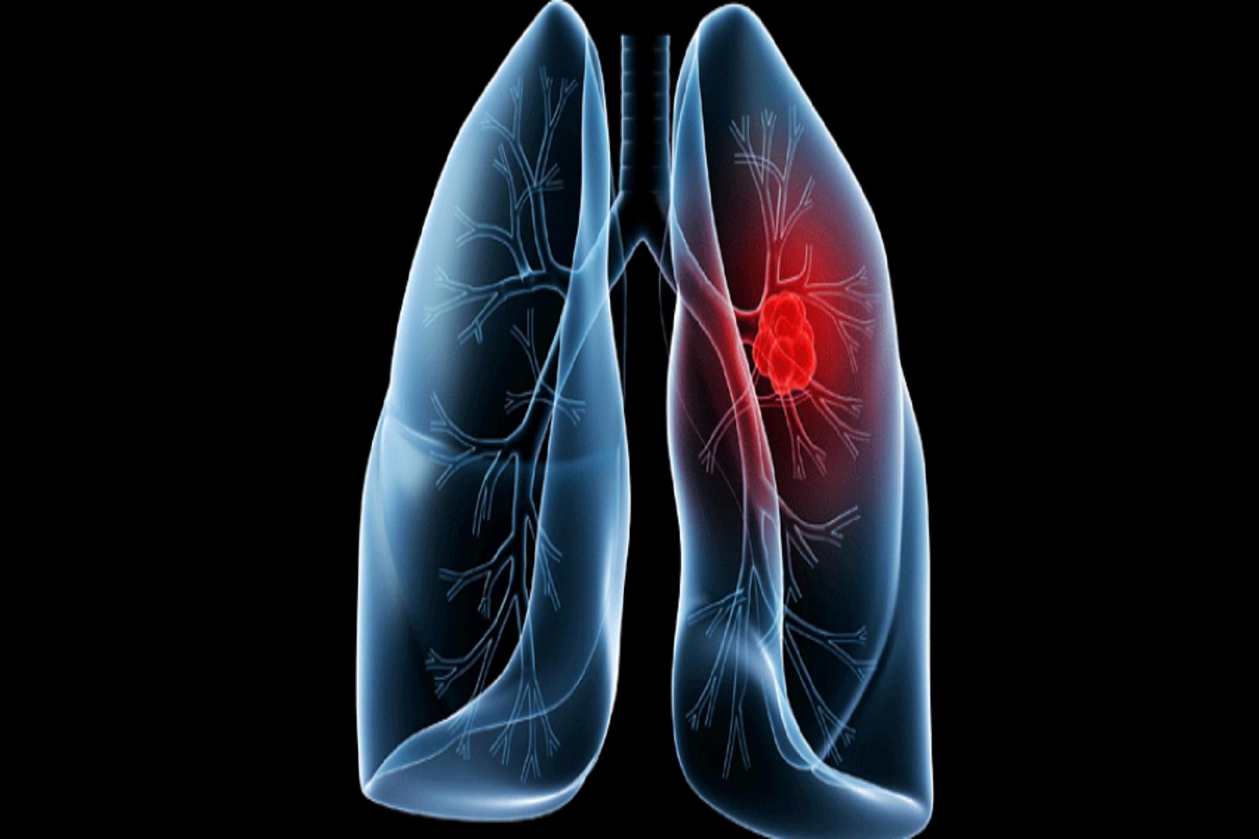 Εθνικό Ινστιτούτο Υγείας: Η αποκαλυπτική αιτία  πίσω από τους καρκίνους των πνευμόνων όσων δεν κάπνισαν ποτέ.