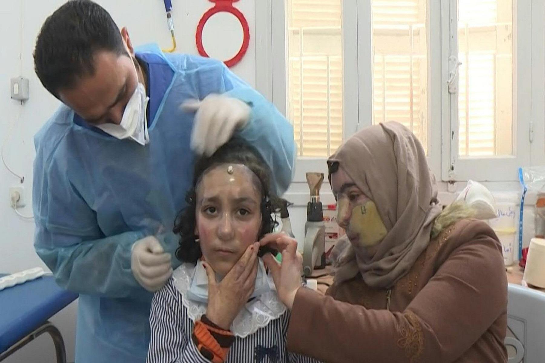 Ιωάννα Παλιοσπύρου: Τι προσφέρει η χρήση της μάσκας στους ασθενείς με εγκαύματα στο πρόσωπο