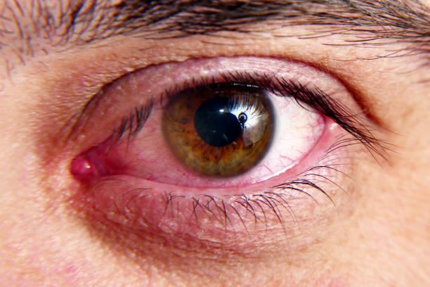 Ξηροφθαλμία θεραπεία: Σπιτική θεραπεία για την ξηροφθαλμία
