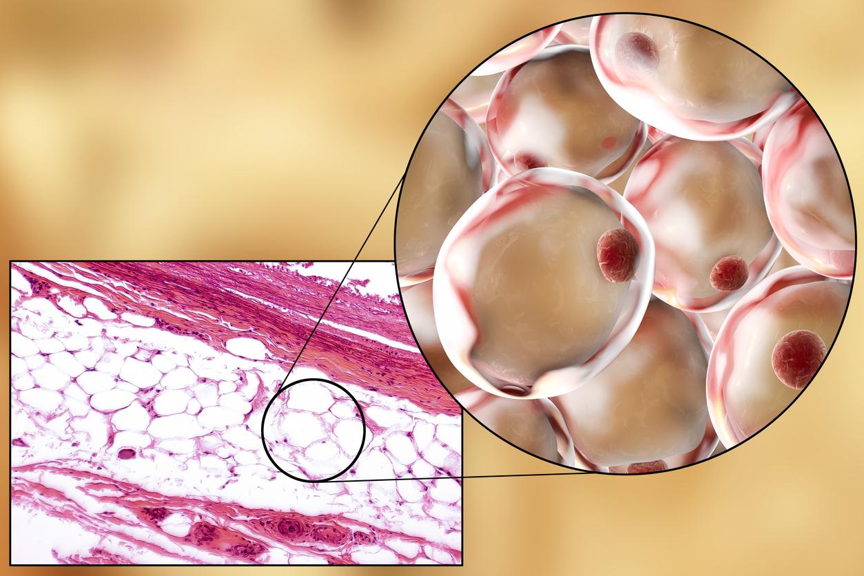 Λιποκύτταρα γονίδια: Γονιδιακή επεξεργασία μετατρέπει τις ιδιότητες των λιποκυττάρων