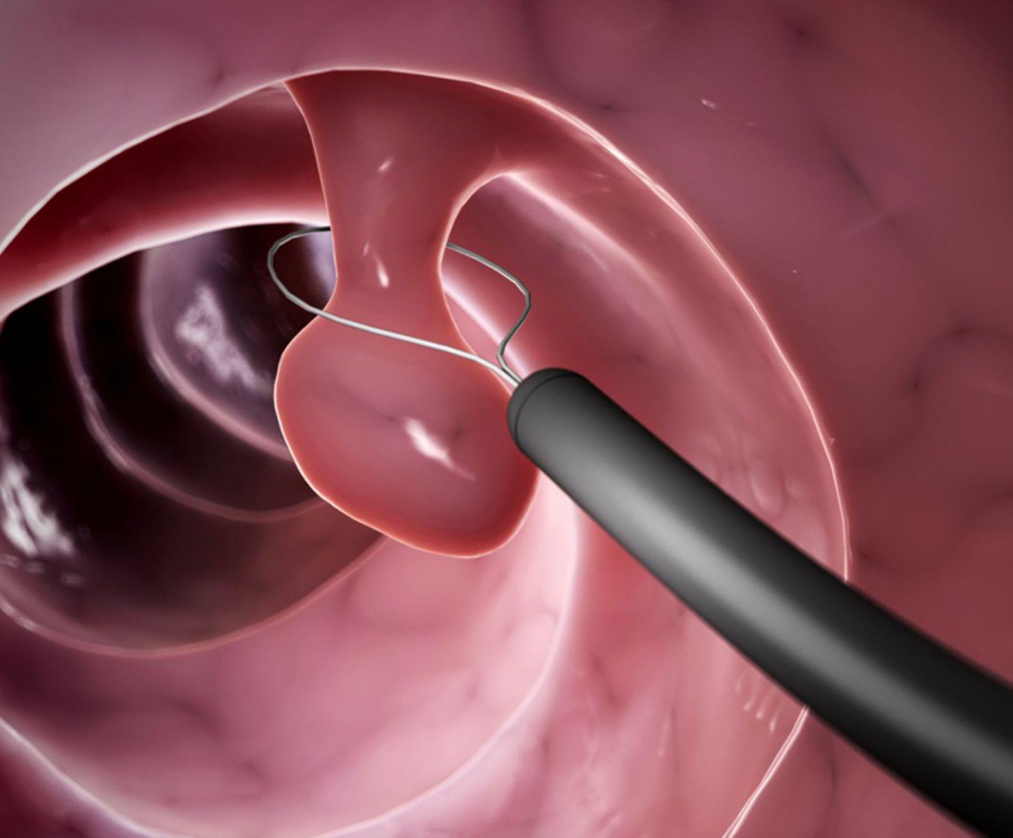 Κολονοσκόπηση εξέταση : Για την πρόληψη του καρκίνου του παχέος εντέρου
